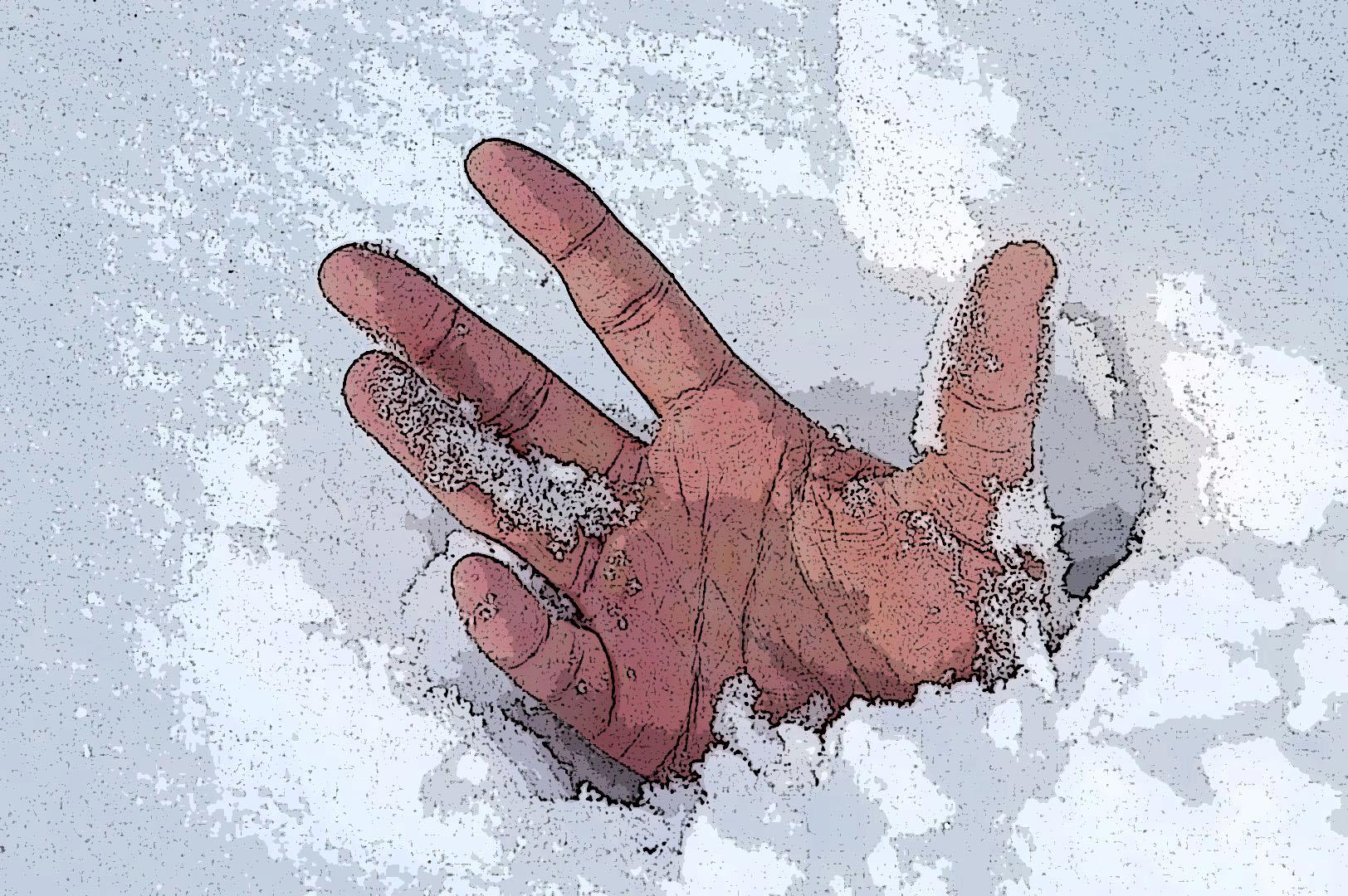 что делать, при, первая помощь, обморожении, степени, признаки, обморожения