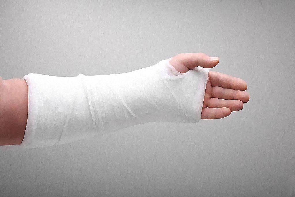 что делать, при, переломах, переломе, первая помощь