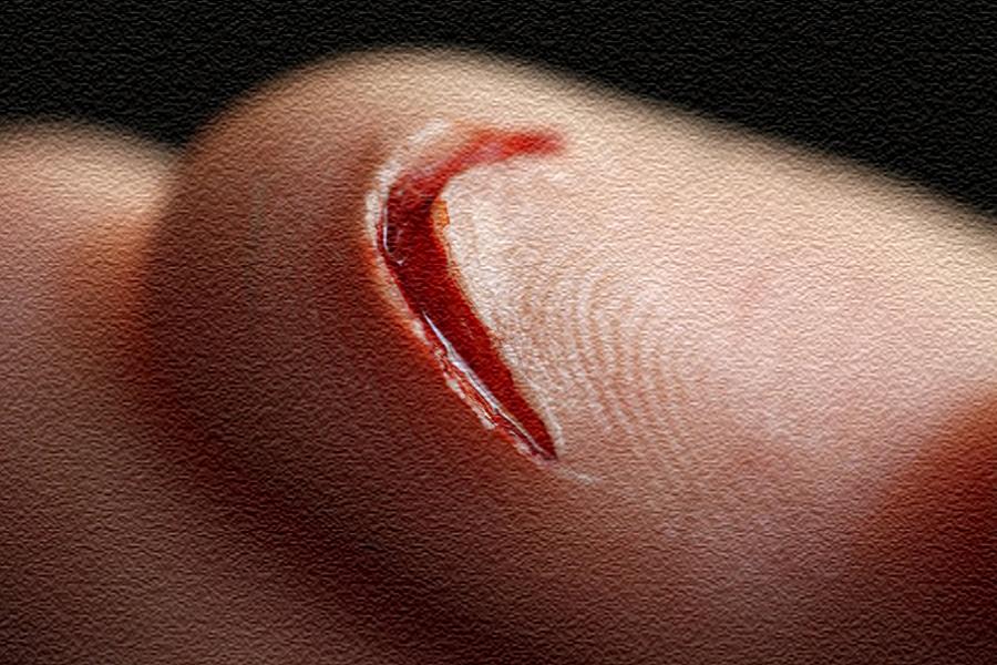 что делать, первая помощь, при порезе, виды порезов